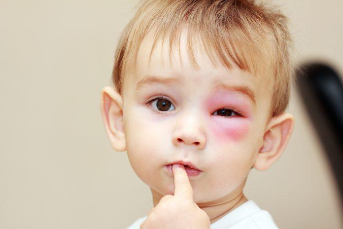 thuốc bôi côn trùng cắn cho bé